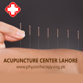 Acupuncture in Lahore | Chinese Acupuncture Therapy Clinic
